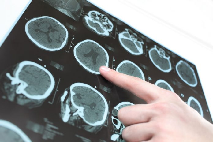 Is there any relation between brain supplement and alzheimer's?
