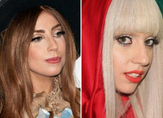 Singer Lady Gaga Was Pressured to Get a Nose Job