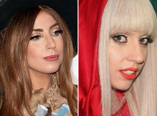 Singer Lady Gaga Was Pressured to Get a Nose Job
