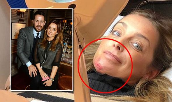 Louise Redknapp shocking injury pictures, Report