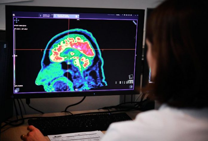 Women's brains appear three years younger than men's, a study has found