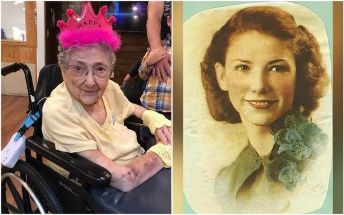A 99-year-old woman lived with organs on the wrong side of her body