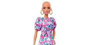 Barbie with no hair and vitiligo to be launched, Report