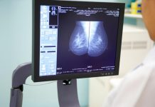 Google's AI Bested Doctors in Detecting Breast Cancer, Report