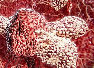 Immune cell which kills most cancers discovered, Report