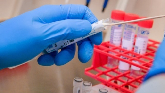 COVID-19 UK Update: 89 new coronavirus cases in wales