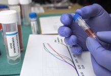UK opts out of EU Coronavirus vaccine scheme