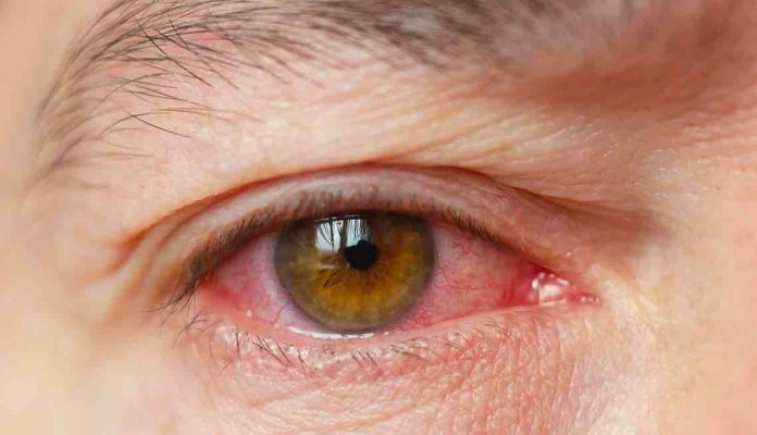 Coronavirus: Eye issues could be early Covid infection warning sign - symptoms to look out for