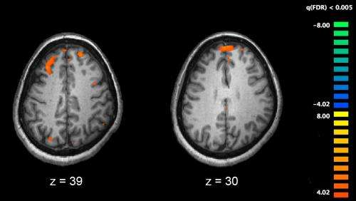 Research finds evidence of Bartonella infection in schizophrenia patients
