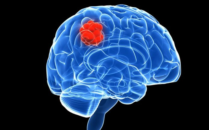 Scientists discover new way to starve brain tumours