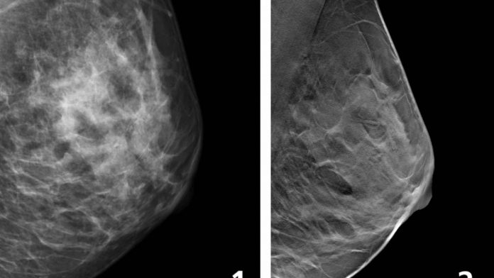 Study: Fewer breast cancer cases between screening rounds with 3D-mammography