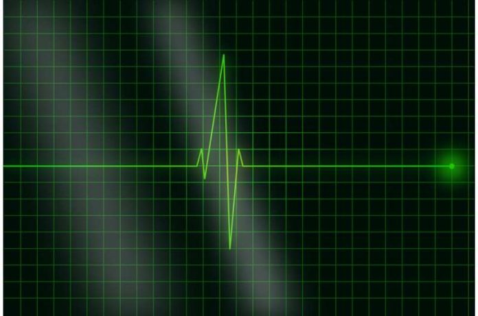 Study: Heart patients advised to move more to avoid heart attacks and strokes