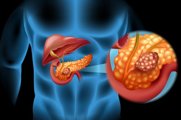 Pancreatic cancer trials fail to include minorities despite worse outcomes, says study