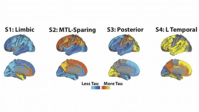 Research: Alzheimer's disease is composed of four distinct subtypes