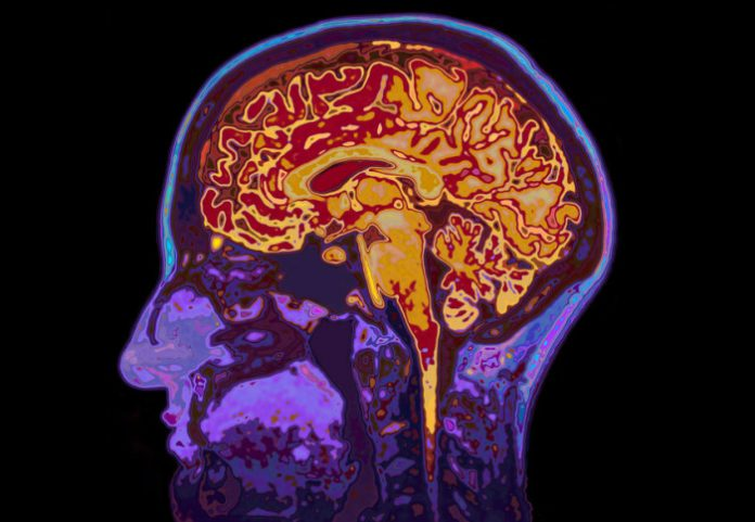 Study: New clues into why people with type 2 diabetes develop dementia