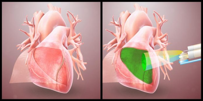 Bio-inspired hydrogel protects the heart from post-op adhesions, says study