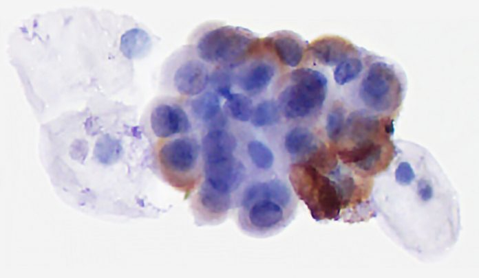 Research shows novel test can detect new and recurrent bladder cancer