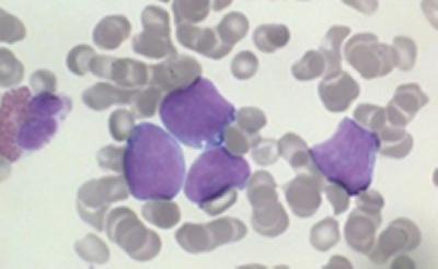 Researchers discover a fundamental feature of aggressive lymphomas