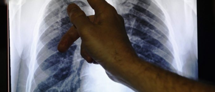 Tuberculosis programs should focus more on young people, says study